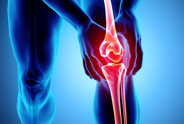 Knee Pain X-Ray